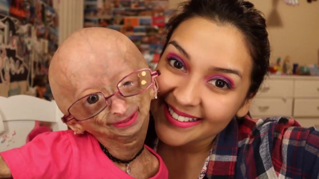 youtuber disabilitas : adalia rose