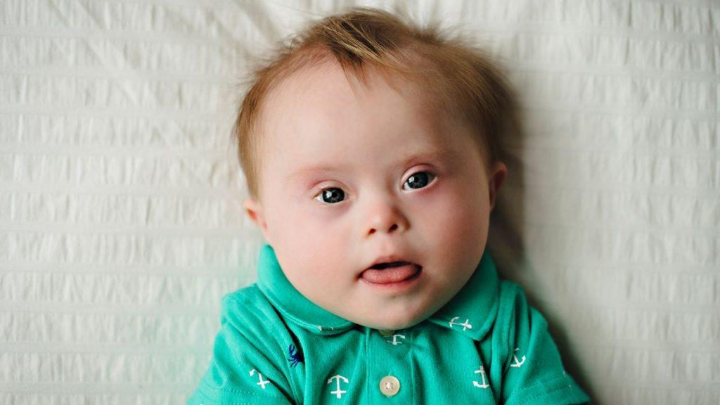 Bayi Down Syndrome